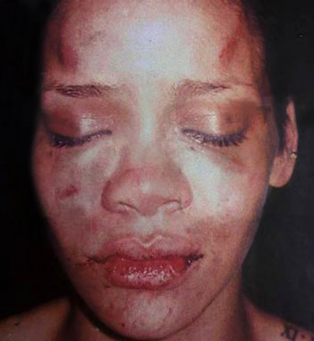 Rihanna beaten up by Chris Brown The Bar None